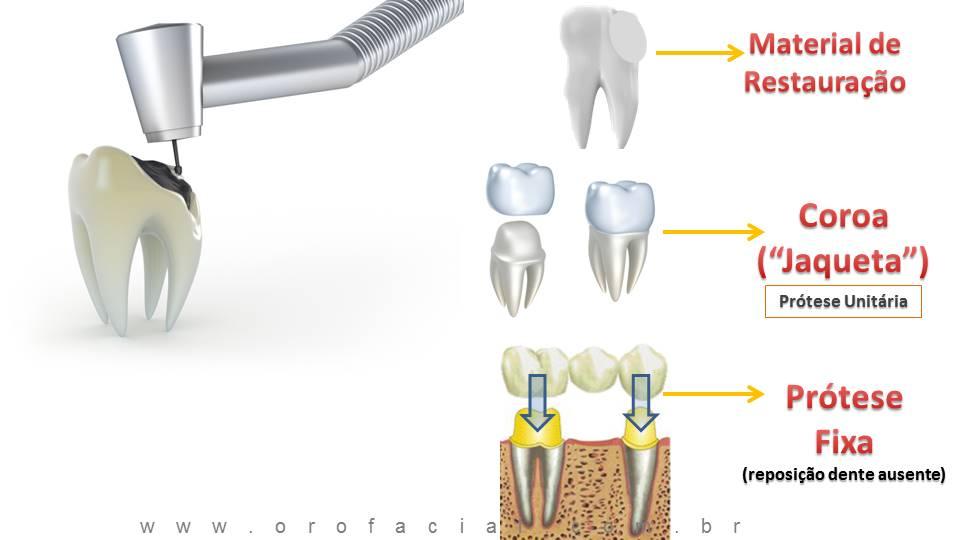 Restauração cárie dente prótese