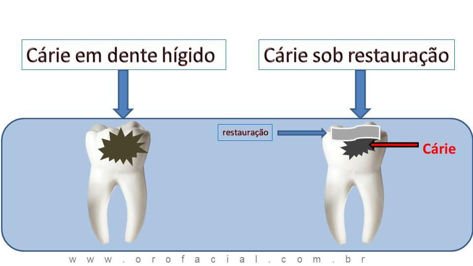 Infiltração Cárie Dente Obturação