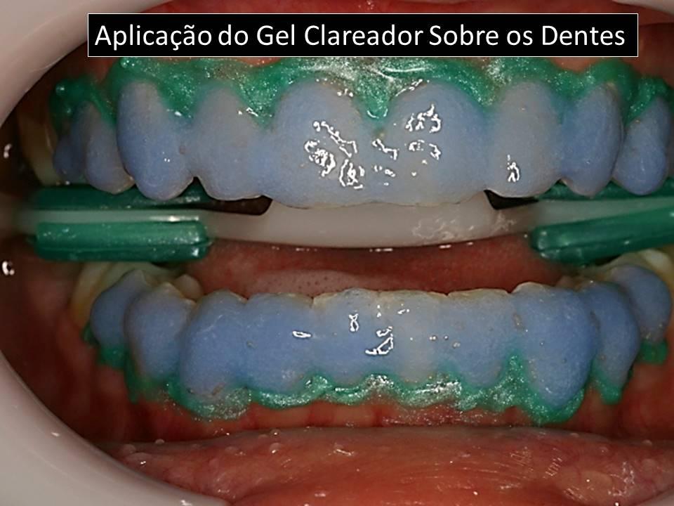Como clarear os dentes: aplicação do gel clareador