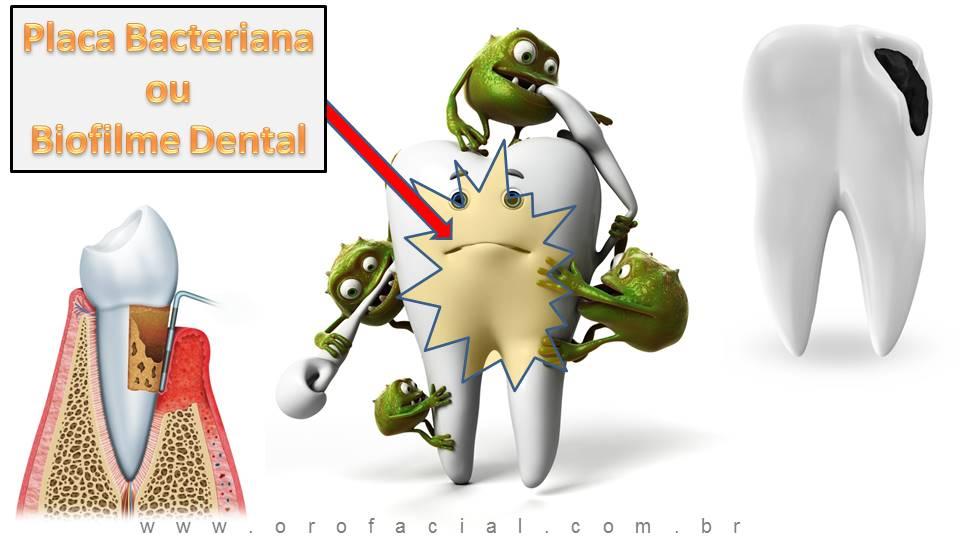 Cárie Dental Placa Bacteriana