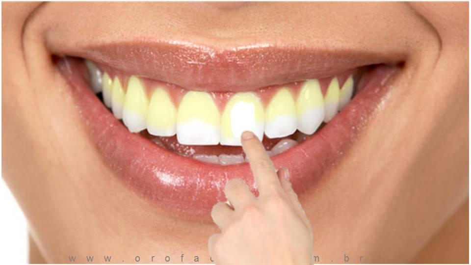 Dentes Placa Bacteriana