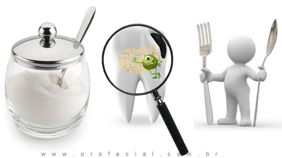 Placa Bacteriana Cárie Açúcar