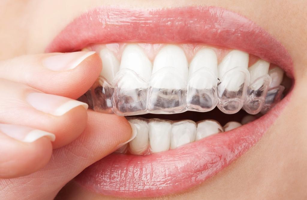 Como clarear os dentes Moldeira Clareamento dental Caseiro