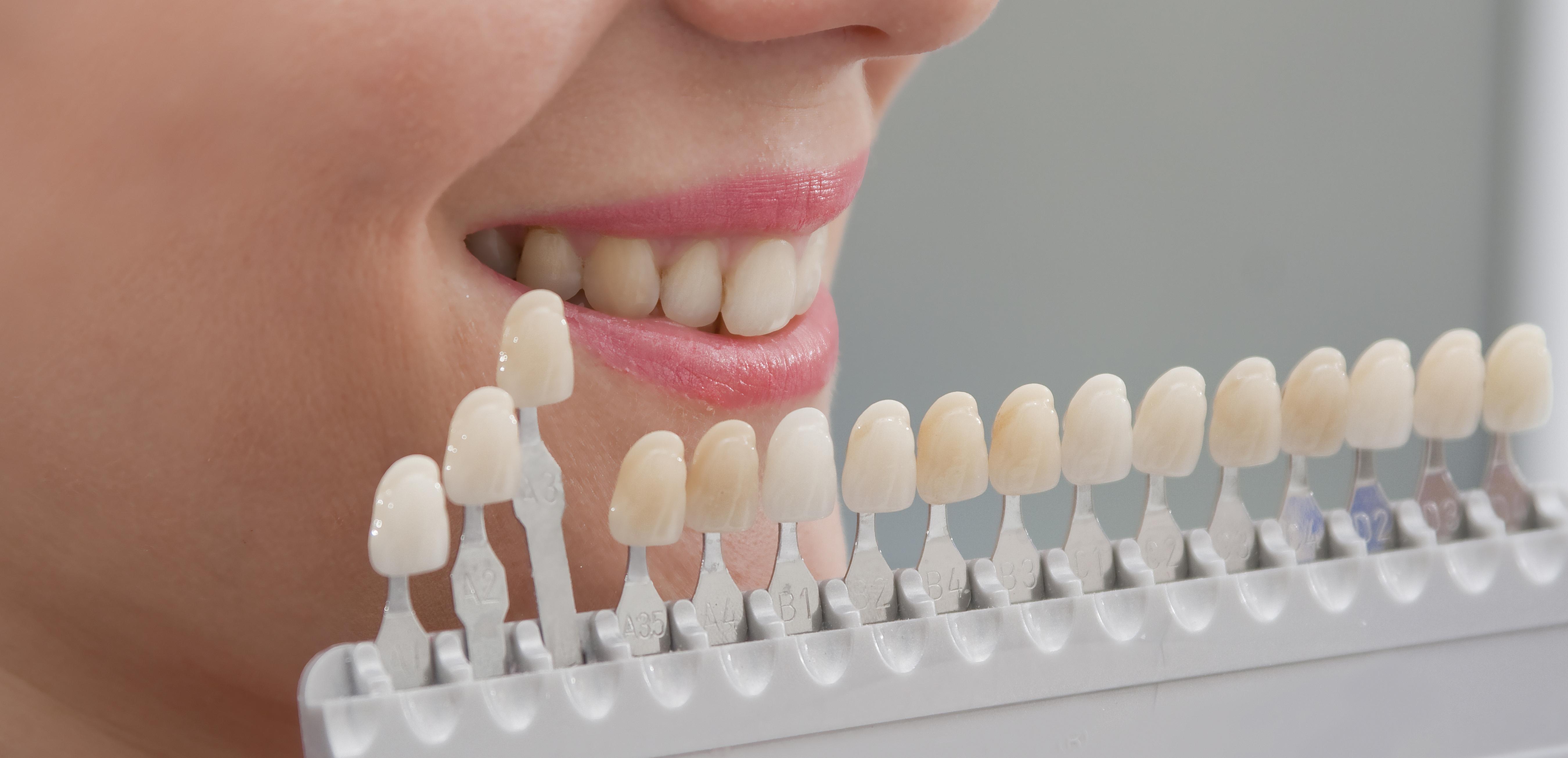 Como clarear os dentes Escolha de cor