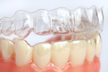 Como clarear os dentes moldeira de clareamento