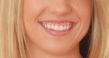 """Orofacial #15 – O que é """"Sorriso Gengival""""?"""