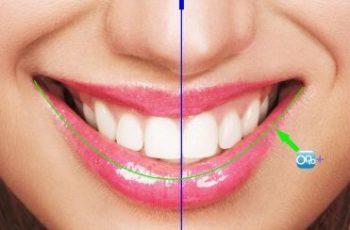 """Orofacial #17 – De Onde Vem a Estética de um Sorriso? – Parte 3:  """"Linha do Lábio Inferior"""""""
