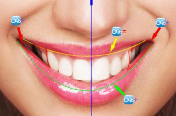 """Orofacial #18 – De onde vem a Estética de um Sorriso? – Parte 2:  """"O Corredor Bucal"""""""