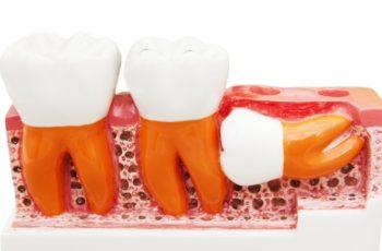 """Orofacial #29 –  Dentes do Siso (""""Dente do Juízo""""): Feliz Quem Não Os Têm"""