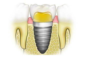 Orofacial #32 – Implantes Dentários – Alguns Conceitos Básicos
