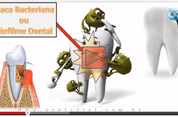 Orofacial #34 – Cárie Dentária