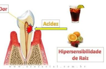 """Orofacial #38 – Dor de Dente ao Frio? Dentes Sensiveis? Você Pode Estar Com """"Hipersensibilidade de Raiz"""""""