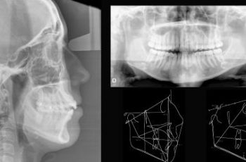 Orofacial #44 – Documentação para Ortodontia: Para que Serve?