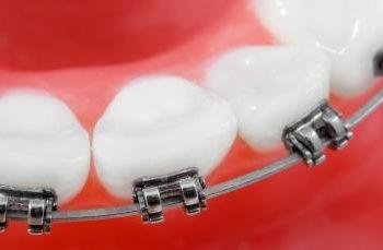 Orofacial #45 – Aparelho para Corrigir os Dentes (Ortodôntico): Qual a Melhor Forma de Limpar o Espaço Entre os Dentes?