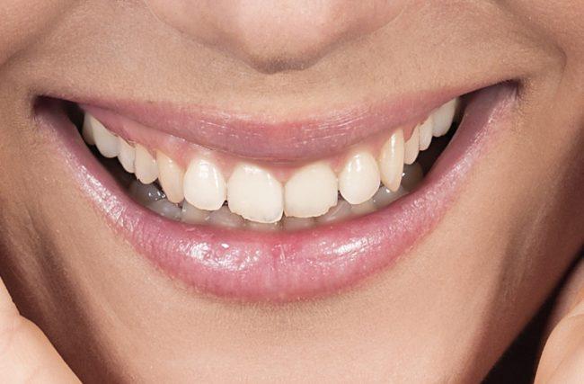 Orofacial #50 – Desgaste dos Dentes e Bruxismo: Um Mal que Você Pode Evitar…