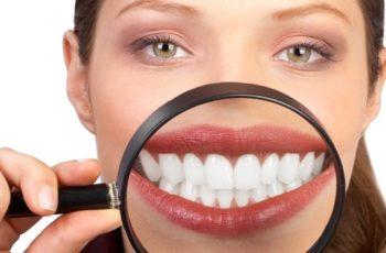 Orofacial #55 – Os Meus Dentes Não Aparecem Quando Sorrio…
