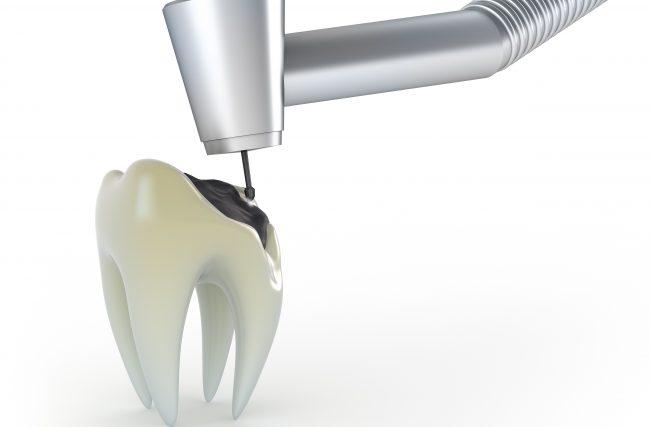 """Orofacial #62 – Pivô X Coroa Dental Total (""""jaqueta"""") X Coroa Dental Parcial X Restauração (""""Obturação"""") do Dente"""