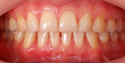 Orofacial #68 – Apertando os Dentes e Bruxismo: Agentes Agressores aos Dentes e Periodonto que Prejudicam a Saúde de Dentes e Gengivas