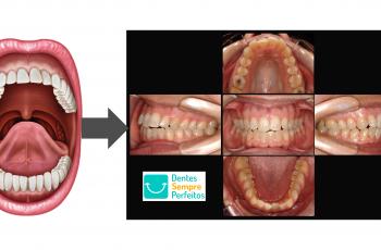 Orofacial #81  – Cárie Dental – Você Já Viu Isso?
